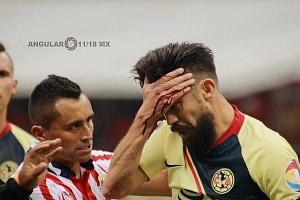 fuerte choque de  cabezas entre Oribe Peralta # 24 del las Águilas y el jugador Rojiblanco Jair Pereira # 4